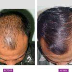 Case 3 : Medical Hair Transplant