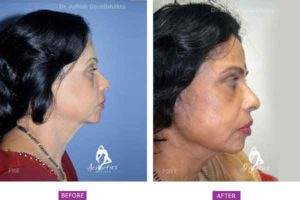 Case 3: (Post Bariatric Ageing) Side View