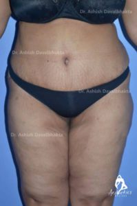 Case 8: Liposuction of Abdomen, Flank, Lower Back, Inner Thigh and Abdominoplasty