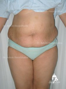 Lipoabdominoplasty Case 5