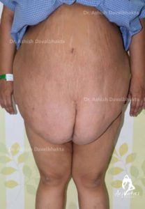 Lipoabdominoplasty Case 2