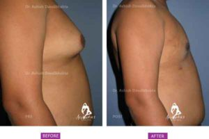 Gynaecomastia Surgery Case 5: Side View