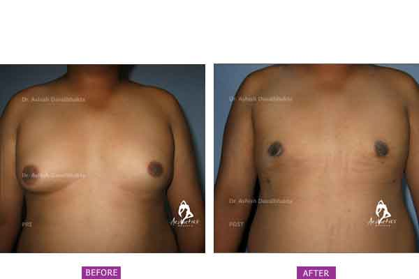 Case 5: Grade 2 Gynaecomastia Treated by Liposuction and Gland Excision