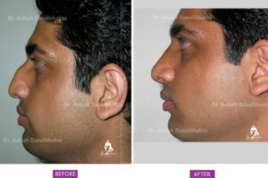 Rhinoplasty Case 2: Correction of Deviation and Hump : Size View
