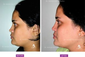 Rhinoplasty Case 5: Augmentation with Alar Flare Correction: Side View