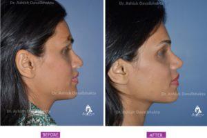 Rhinoplasty Case 7: Augmentation with DCF : Side View