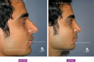 Rhinoplasty Case 8 : Augmentation with Septal Cartilage : Side View