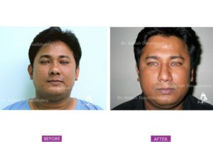 Rhinoplasty Case 9 : Narrowing with Hump Reduction : Front View