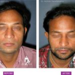 Case 1 : Surgical Hair Transplant : Front View