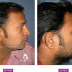 Case 1 : Surgical Hair Transplant : Side View