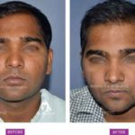 Case 2 : Surgical Hair Transplant : Front View