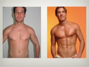 4D Liposuction VASER