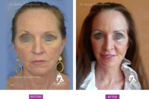 Case 5: Upper and lower eyelid blepharoplasty, facelift, necklift and fat grafting