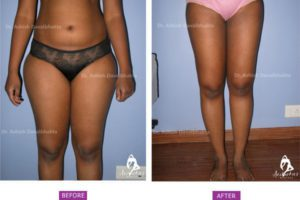 Case 2: Standard liposuction of saddle bags and inner thighs