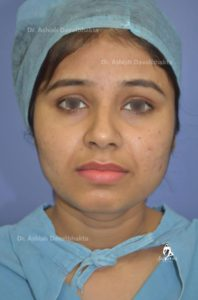 Case 1: Acne scar treatment with subscission and fat grafting followed by dermabrasion