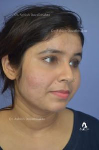 Acne Scar Treatment 5