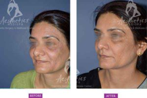 Case 4: Botox and fillers
