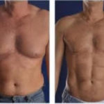 VASER 4D Liposuction