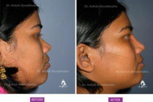 Rhinoplasty Case 3: Augmentation with DCF : Side View
