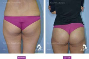 Buttock Augmentation Case 1 back view