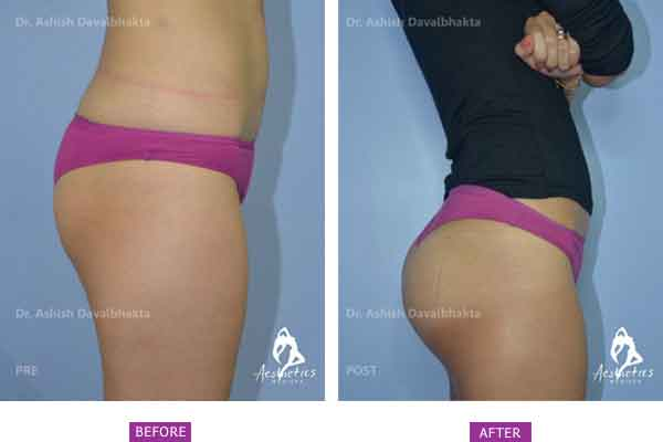 Buttock Augmentation Case 1 side view