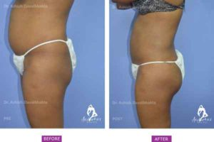 Buttock Augmentation Case 3 side view
