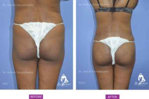 Buttock Augmentation Case 3 back view