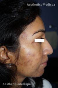 Acne case 2 : right view (before)