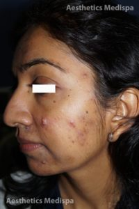 Acne case 2 : left view (before)