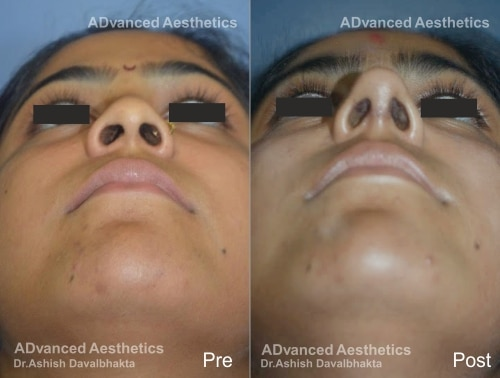 Rhinoplasty Case 16 basal view