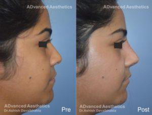 Rhinoplasty Case 16 nose augmentation with Rib Cartilage Graft