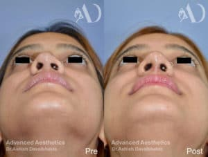 Revision rhinoplasty before-after