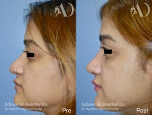 Revision rhinoplasty before-after side view
