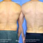 Vaser-4d-liposuction-case-4-back1
