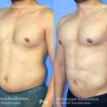 vaser-4d-liposuction-case-4-side1