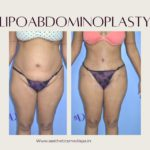 Lipoabdominoplasty case 11 front view