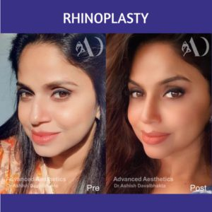 Case 23 : Rhinoplasty : Post-traumatic fracture nose correction